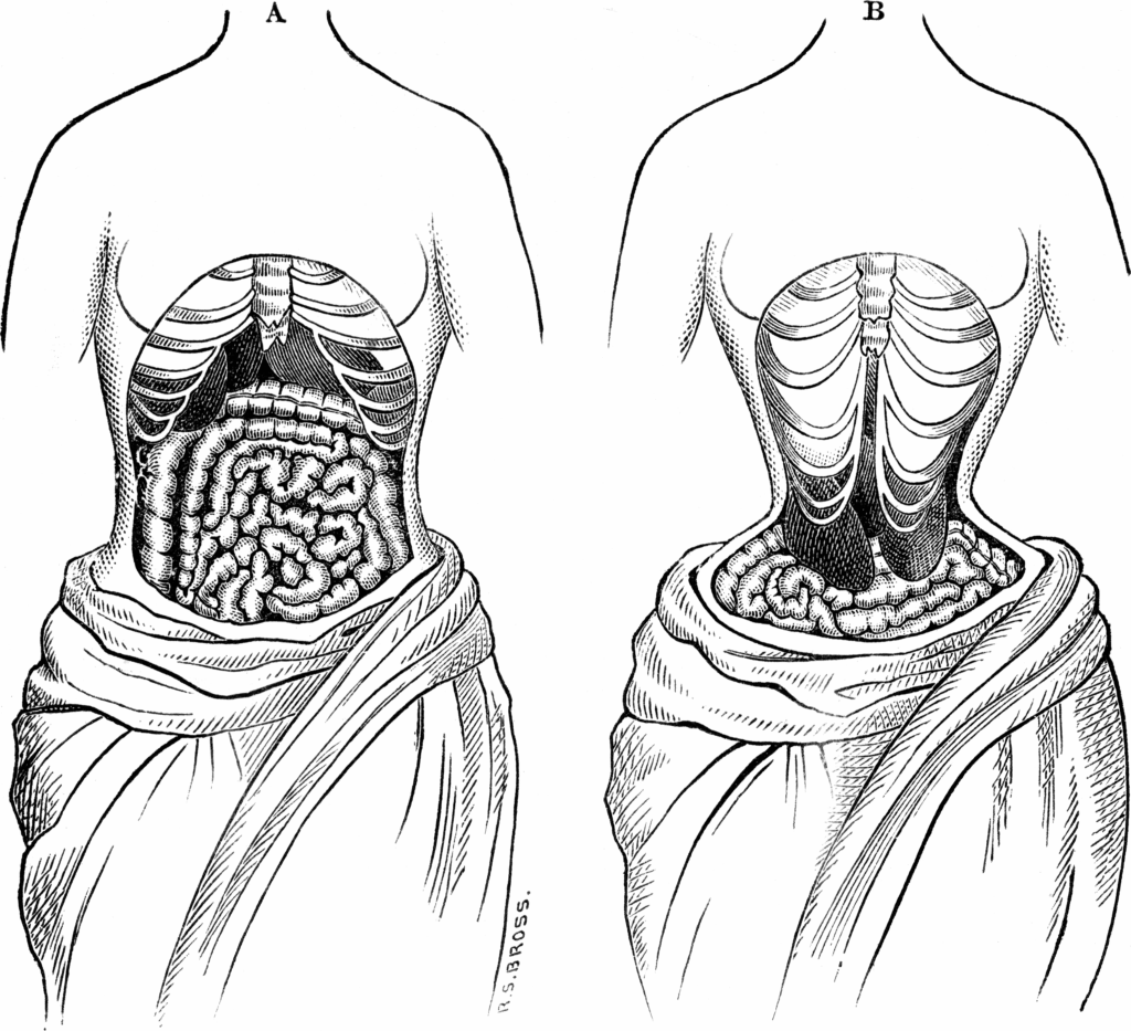 Body deformation due to corsetry